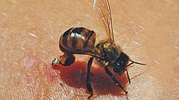 ужаление пчелы
